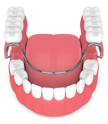 Rendering of Bar-Retained Implant